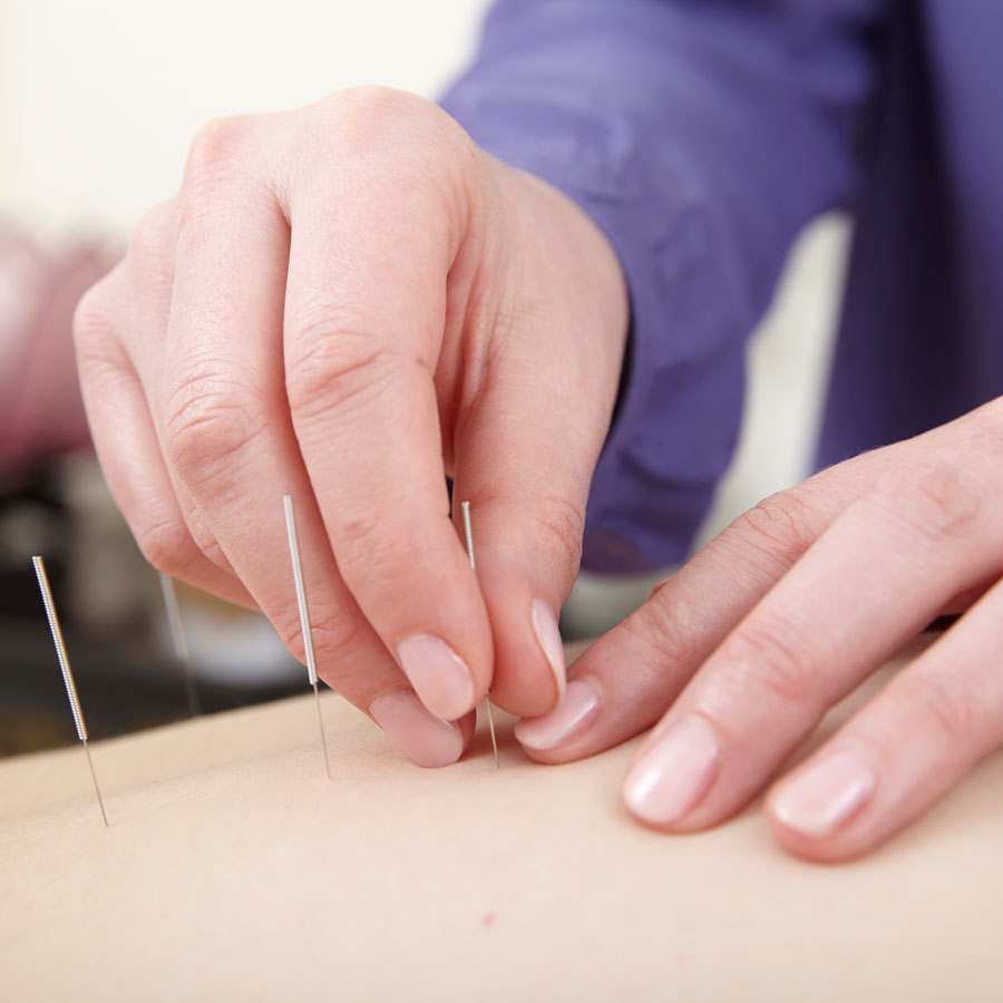 Katharine inserting acupuncture needles
