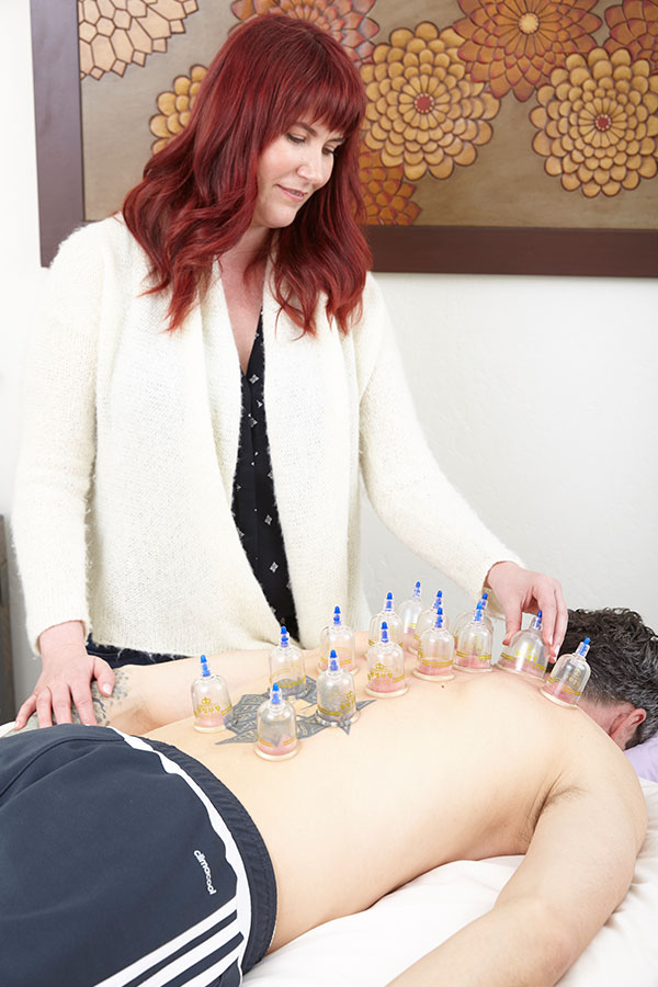 Katharine applying cups to man's back